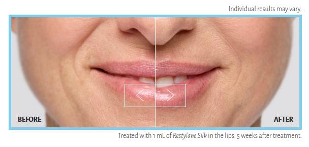 Elysian Med Spa | Wrinkle Reduction & Facial Enhancement